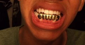 grillz gold grills